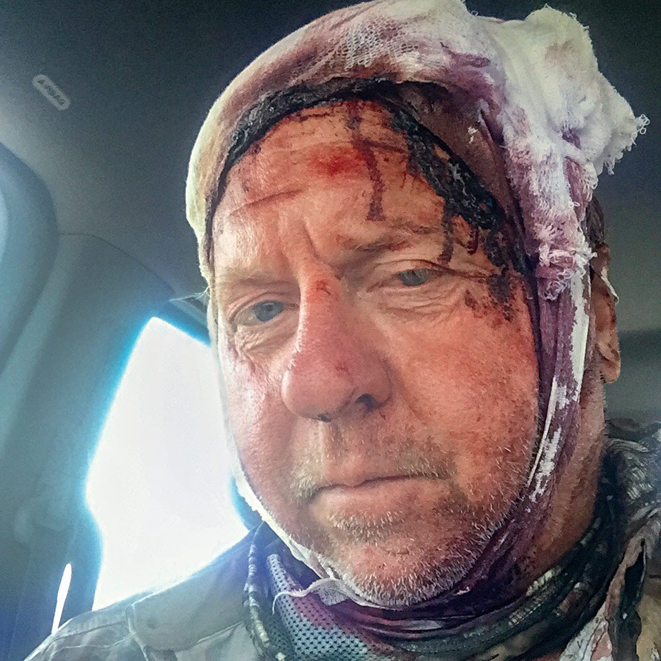 Tom Sommer survived a mauling by a grizzly bear