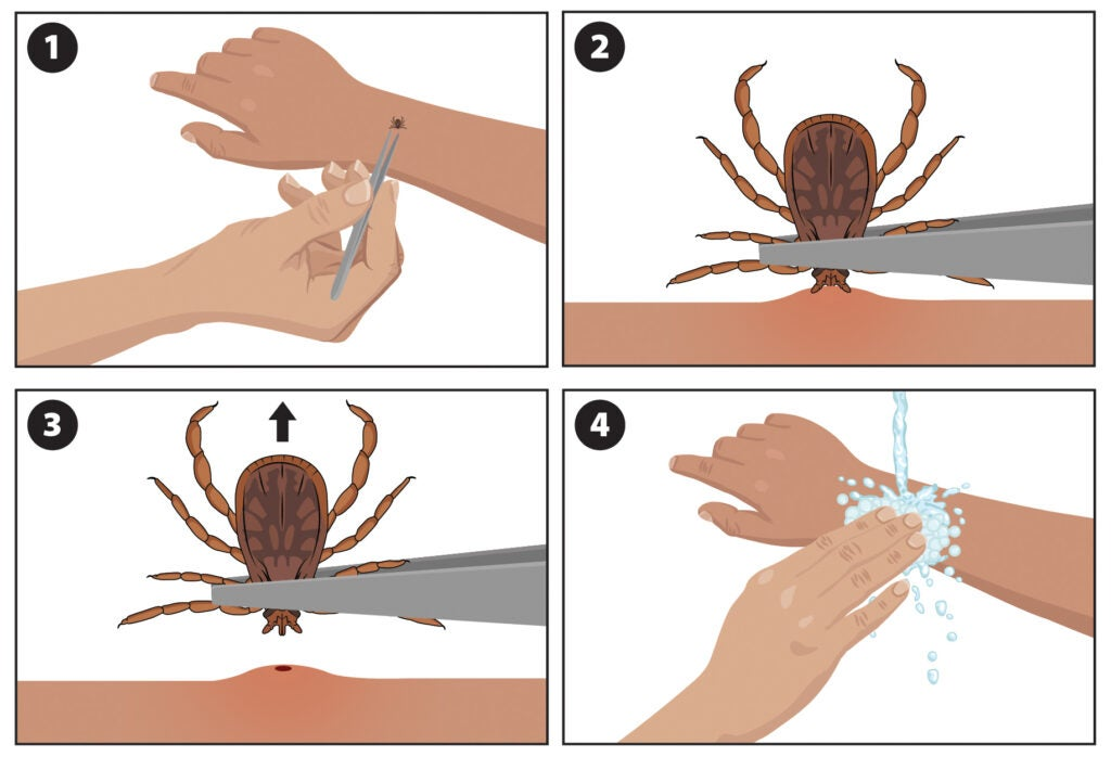 An illustrated guide to tick removal.