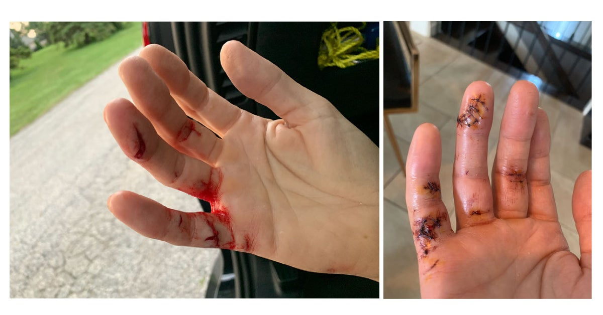 Left: hand with several open gashes; Right: slightly discolored hand with